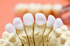 Zircon dentaire/en céramique appuyé photos libres de droits