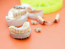 Zircon teeth Stock Photo