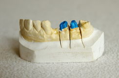 Zirconium or porcelain crown preparation Stock Image