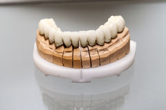 Zirconium Porcelain Tooth plate Royalty Free Stock Images