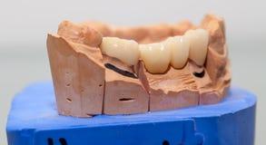 Zirconium Porcelain Tooth plate in Dentist Store Stock Photos