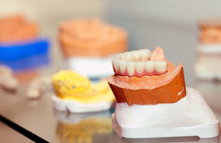 Zirconium Porcelain Tooth plate in Dentist Store Royalty Free Stock Photo
