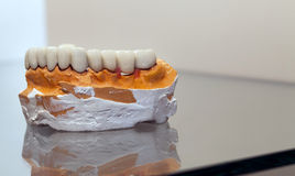 Zirconium Porcelain Tooth plate in Dentist Store Royalty Free Stock Photos