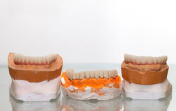 Zirconium Porcelain Tooth plate in Dentist Store Stock Image