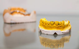 Zirconium Porcelain Tooth plate in Dentist Store Stock Photos