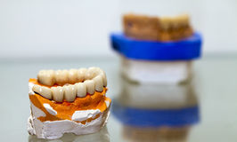 Zirconium Porcelain Tooth plate in Dentist Store Stock Images