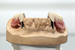 Zirconium Porcelain Tooth plate in Dentist Store. Photo Stock Photography
