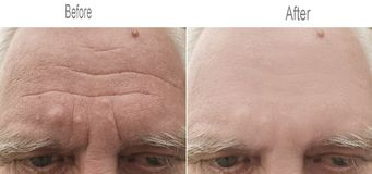 Zmarszczenie, skóra, czoło, oko, stary, brew obrazy stock