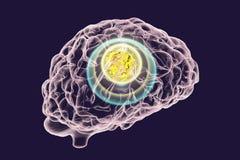 Zniszczenie rak mózgu ilustracja wektor
