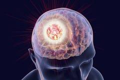 Zniszczenie rak mózgu ilustracji