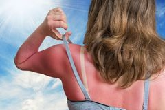 Zonnebrandconcept De jonge vrouw met rood verbrandde huid terug op haar royalty-vrije stock fotografie