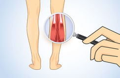 Zoom in Calf Muscle with magnifier Stock Image
