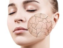 Zoom circle shows dry facial skin before moistening. Dry skin concept stock image