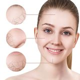 Zoom circle shows facial skin before moistening. Royalty Free Stock Photos