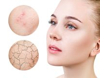 Zoom circles shows problem skin of young woman. Skin with imperfections concept stock photography