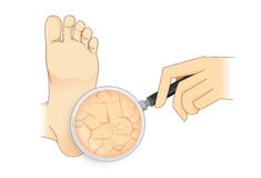 Zoom in cracked heel with magnifier on . Illustration about beauty foot skin Stock Photos