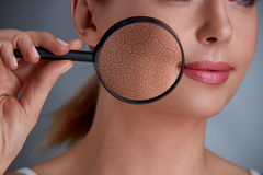 Zoom damage on skin. Woman holding magnifier and zoom damage on skin stock photography
