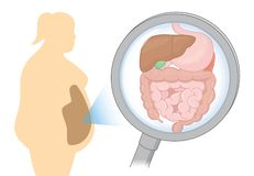 Zoom in internal organ about digestion of Fat woman with Magnifying glass. Royalty Free Stock Image