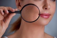Zoomschaden auf Haut stockfotografie