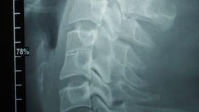 Zorra disparada da imagem do raio X video estoque