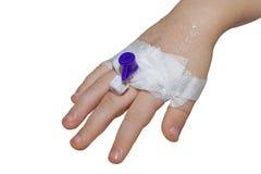 Zusatzvenenkatheter in der Ader der Kinderhand lokalisiert auf weißer Nahaufnahme Stockfotografie