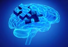 Zwakzinnigheidsziekte en een verlies van hersenenfunctie en geheugen Stock Afbeeldingen