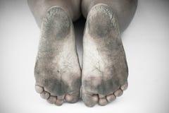 Zwart-wit of achter en wit van vuile voet of gebarsten hielen isoleer op witte achtergrond, medisch of voeten gezondheids van de  Stock Afbeelding