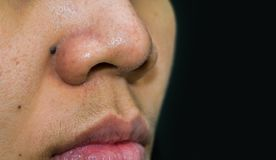 Zwarte mol achter de Laser van Co2 van de neusbehoefte aan verwijdering Meeëtersacne op Aziatische vrouwenneus Comedones en de gr royalty-vrije stock foto