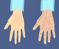 Zwei Arten Hand, alt und jung, Vektorillustration lizenzfreie abbildung