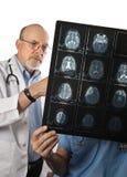 Zwei Gehirn-Scans der Doktor-Viewing MRI Stockfotografie