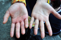 Zwellende hand Royalty-vrije Stock Foto's