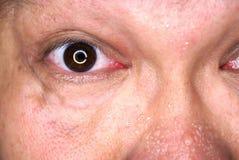 Zwetend gezicht en oog stock fotografie