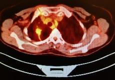 Zwierzęcia domowego ct obrazu cyfrowego dobra płuca lobe niski carcinoma fotografia royalty free