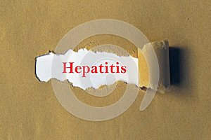 Hepatitis illustration
