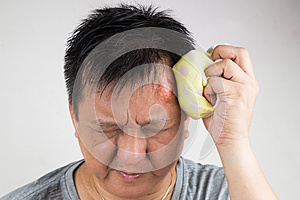 Man treating his injured painful swollen forehead bump with icepack