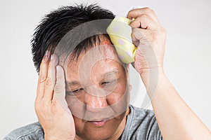 Man treating his injured painful swollen forehead bump with icep