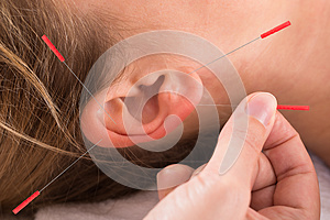 Hand Performing Acupuncture Therapy On Auricle