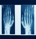 X-ray Picture Stock Photos - 20967023