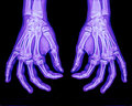 Normal Xray Of Both Hands Stock Photo - 24374550