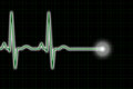 Green And Black ECG Trace Royalty Free Stock Photography - 25762187