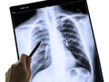 X-Ray Image Of Human Chest For A Medical Diagnosis Royalty Free Stock Images - 39383839