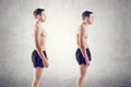 Man With Impaired Posture Position Defect Royalty Free Stock Photos - 41988658