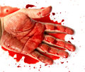 Hand In Blood Stock Images - 42651144