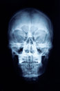 X-ray Picture Of The Skull Royalty Free Stock Photo - 43003275