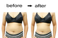After A Diet Royalty Free Stock Photography - 57223797