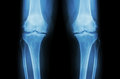 Osteoarthritis Knee ( OA Knee ). Film X-ray Both Knee ( Front View ) Show Narrow Joint Space ( Joint Cartilage Loss ) , Osteophyte Royalty Free Stock Images - 59831339