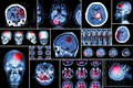 Set , Collection Of Brain Disease ( Cerebral Infarction , Hemorrhagic Stroke , Brain Tumor , Disc Herniation With Spinal Cord Comp Stock Images - 61362354