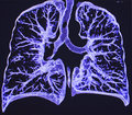 Lungs, CT Royalty Free Stock Photos - 62803408