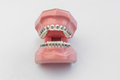 Open Artificial Human Jaw With Perfect Teeth And Braces Stock Photos - 73701133