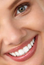 Beautiful Smile. Smiling Woman Face With White Teeth, Full Lips Stock Image - 76139771